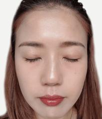 DR's Secret review Amber Pek after