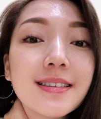 DR's Secret review Belinda Lim after