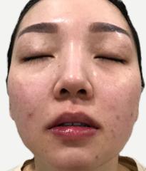 DR's Secret review Belinda Lim before