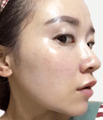 DR's Secret review Fang Yuan after