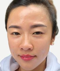 DR's Secret review Iris Yang after