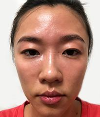DR's Secret review Iris Yang before