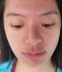 DR's Secret review Jessica Chen before