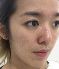 DR's Secret review Jessie Cheng before