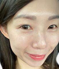 DR's Secret review Kylie Lim after