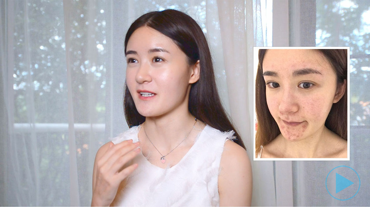 Review: Zhang Hong - My Skin Went From Severe Acne To No Longer Acne-prone