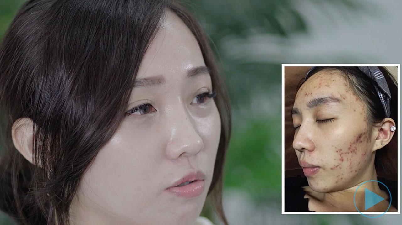 DR's Secret Skin Squad Review Yan Jhen